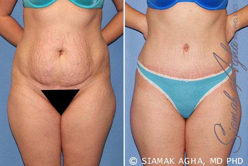 Orange County Newport Beach Tummy Tuck 23 Front Alt View