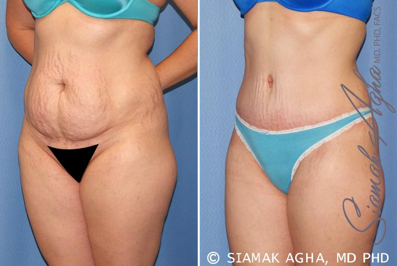 Orange County Newport Beach Tummy Tuck 23 Front Left Alt View