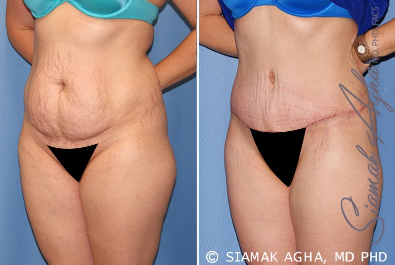 Orange County Newport Beach Tummy Tuck 23 Front Left View