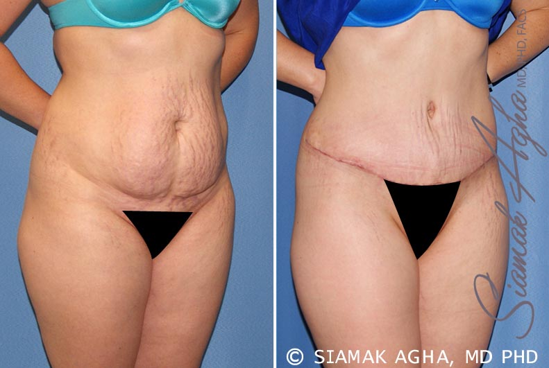 Orange County Newport Beach Tummy Tuck 23 Front Right View