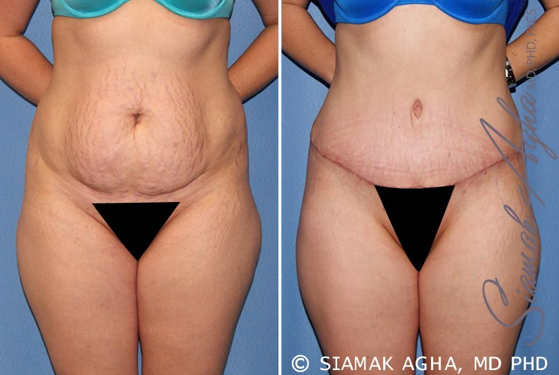 Orange County Newport Beach Tummy Tuck 23 Front View