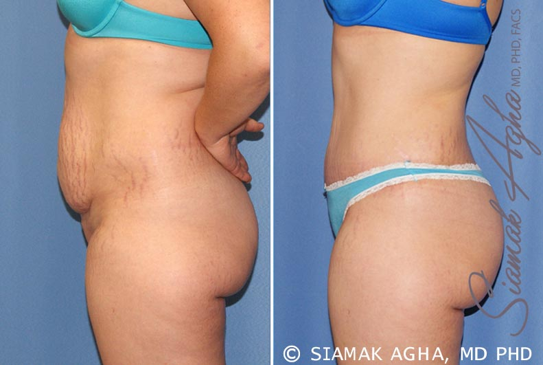 Orange County Newport Beach Tummy Tuck 23 Left Alt View