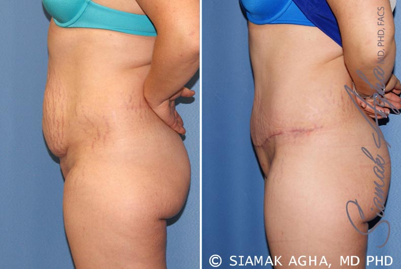 Orange County Newport Beach Tummy Tuck 23 Left View