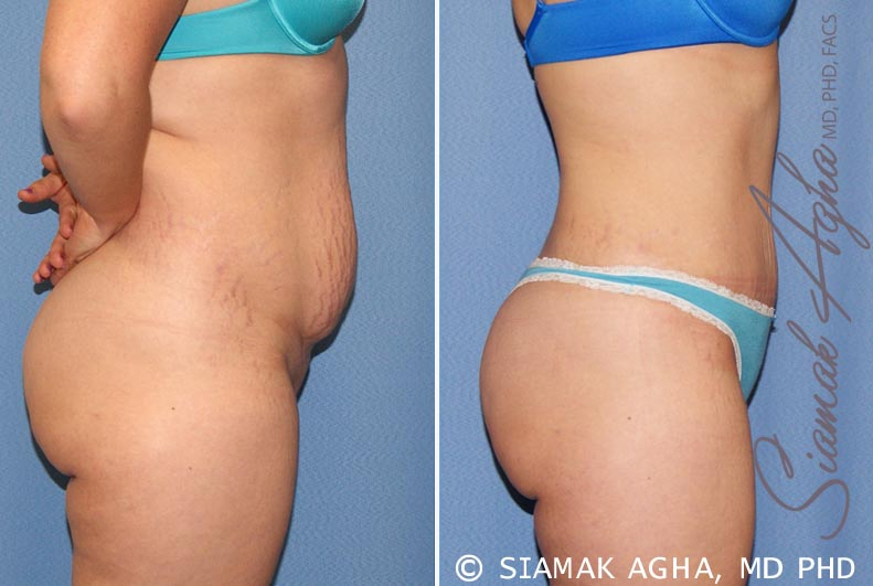 Orange County Newport Beach Tummy Tuck 23 Right Alt View