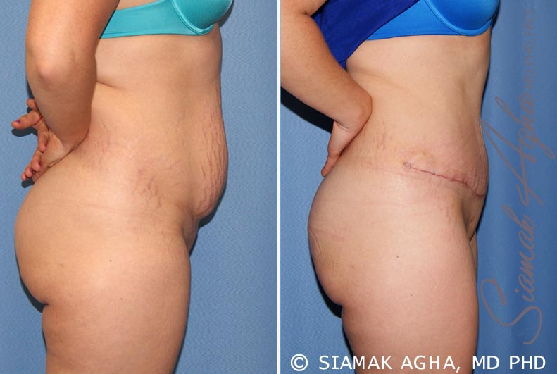 Orange County Newport Beach Tummy Tuck 23 Right View