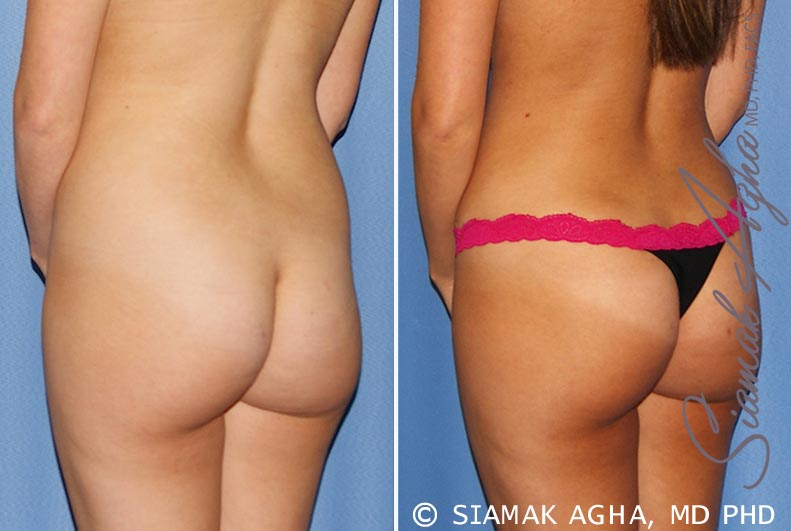 Orange County Newport Beach Tummy Tuck 25 Back Left View