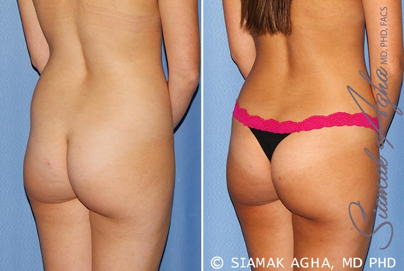 Orange County Newport Beach Tummy Tuck 25 Back Right View