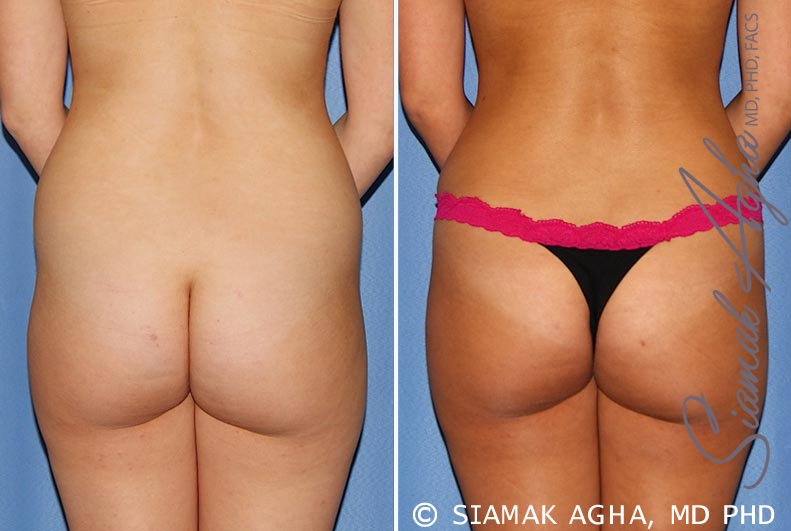 Orange County Newport Beach Tummy Tuck 25 Back View