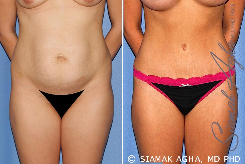 Orange County Newport Beach Tummy Tuck 25 Front Alt View