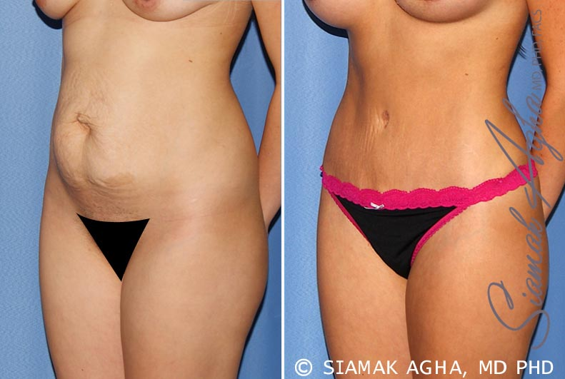 Orange County Newport Beach Tummy Tuck 25 Front Left View