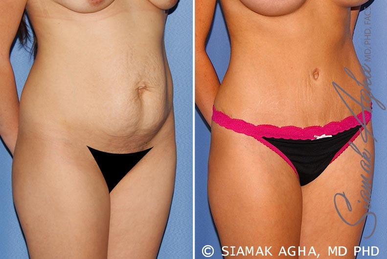 Orange County Newport Beach Tummy Tuck 25 Front Right View