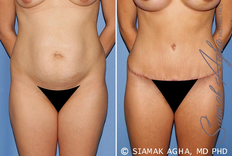 Orange County Newport Beach Tummy Tuck 25 Front View