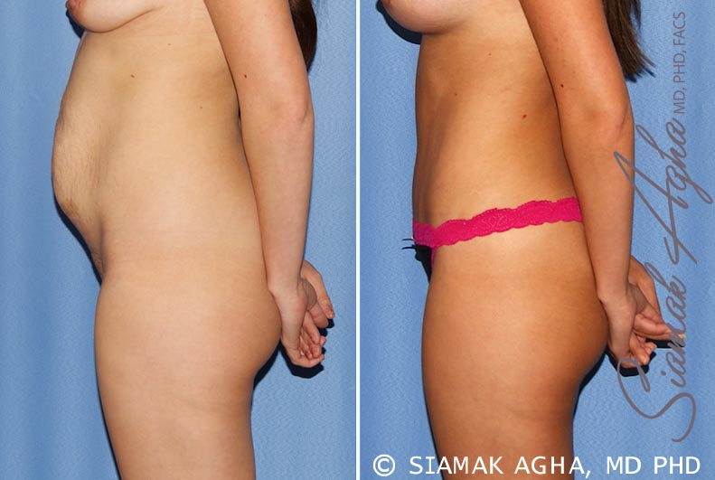 Orange County Newport Beach Tummy Tuck 25 Left View