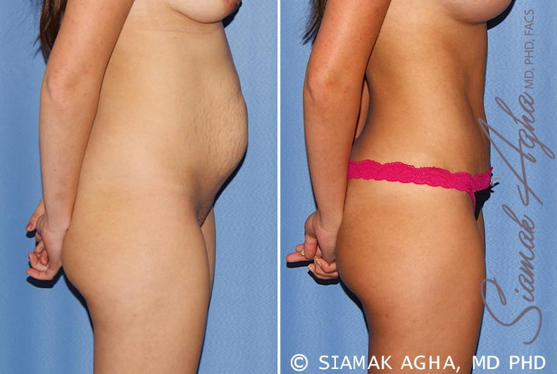 Orange County Newport Beach Tummy Tuck 25 Right View
