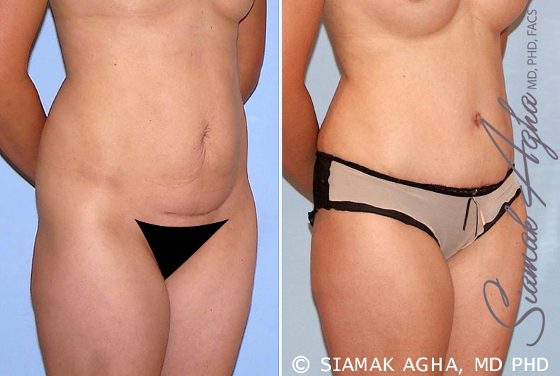 Orange County Newport Beach Tummy Tuck 26 Front Right View