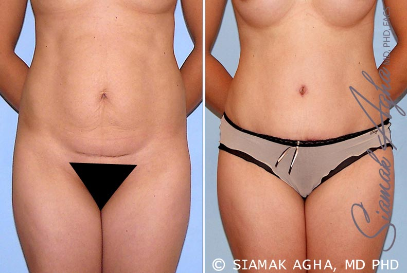 Orange County Newport Beach Tummy Tuck 26 Front View