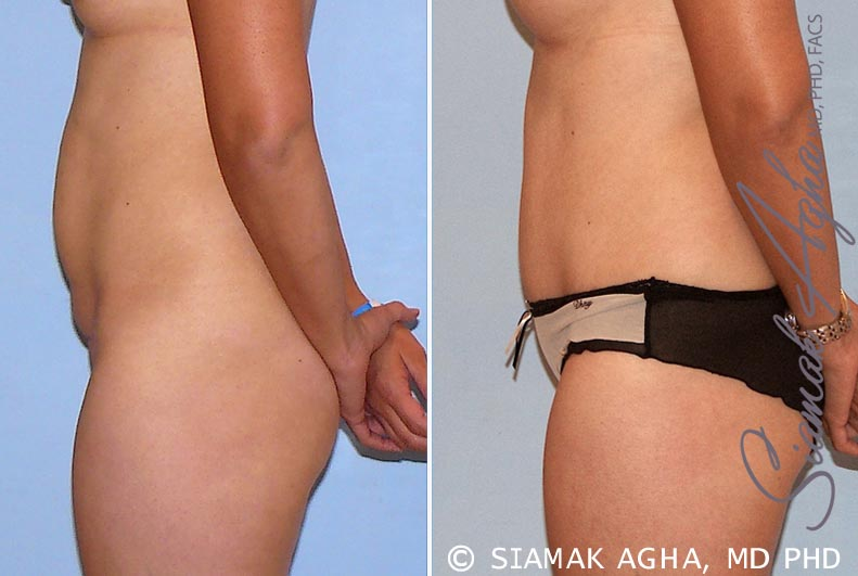 Orange County Newport Beach Tummy Tuck 26 Left View
