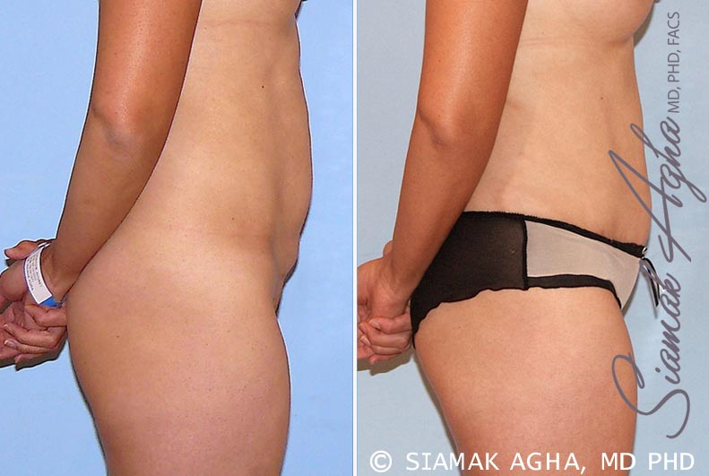 Orange County Newport Beach Tummy Tuck 26 Right View