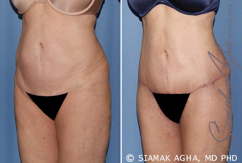 Orange County Newport Beach Tummy Tuck 27 Front Left View