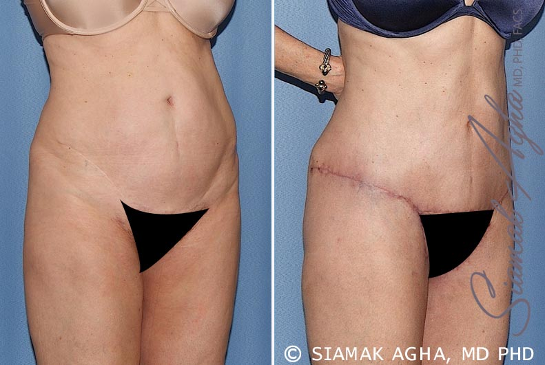 Orange County Newport Beach Tummy Tuck 27 Front Right View