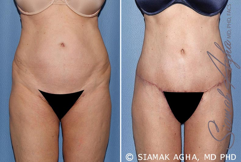 Orange County Newport Beach Tummy Tuck 27 Front View