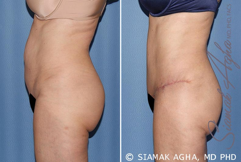 Orange County Newport Beach Tummy Tuck 27 Left View