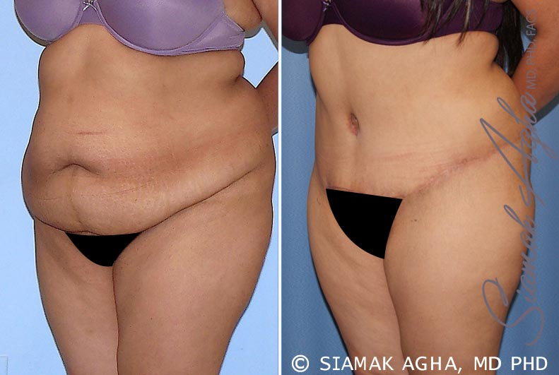 Orange County Newport Beach Tummy Tuck 28 Front Left View