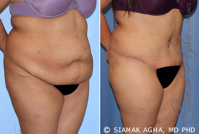 Orange County Newport Beach Tummy Tuck 28 Front Right View
