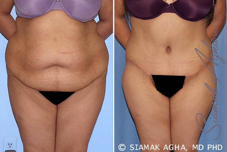 Orange County Newport Beach Tummy Tuck 28 Front View