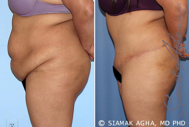 Orange County Newport Beach Tummy Tuck 28 Left View