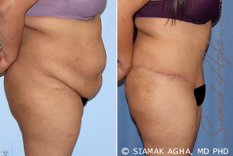Orange County Newport Beach Tummy Tuck 28 Right View