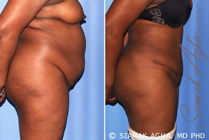 Orange County Newport Beach Tummy Tuck 29 Right View