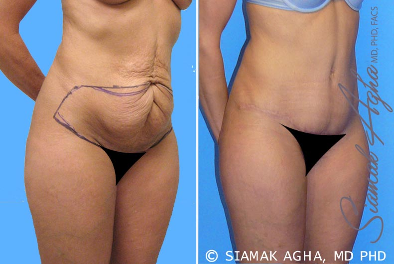 Orange County Newport Beach Tummy Tuck 3 Front Right View