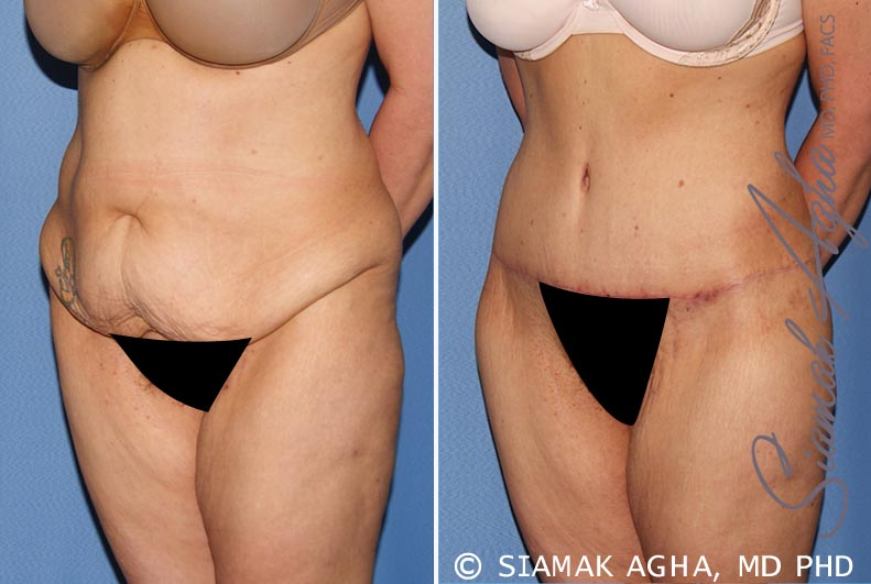 Orange County Newport Beach Tummy Tuck 30 Front Left View