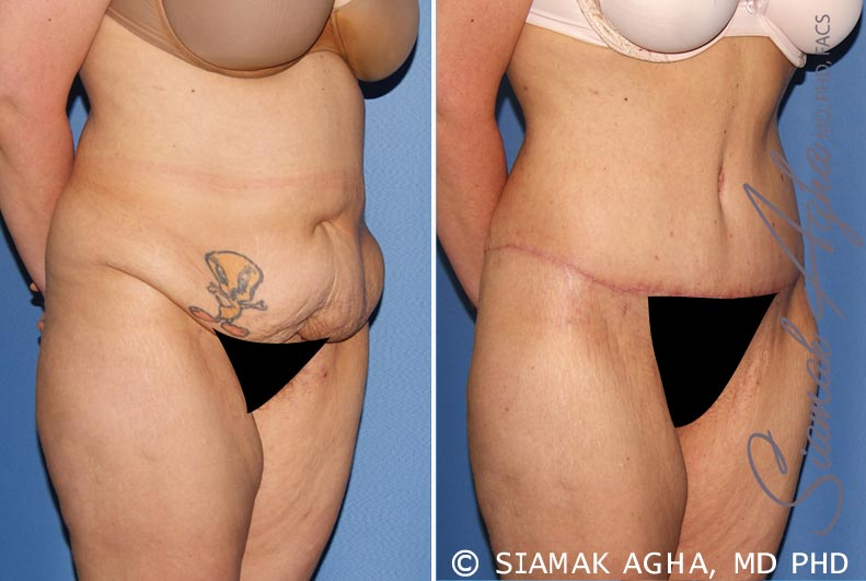 Orange County Newport Beach Tummy Tuck 30 Front Right View