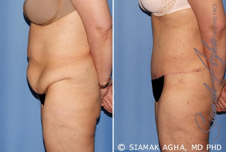 Orange County Newport Beach Tummy Tuck 30 Left View