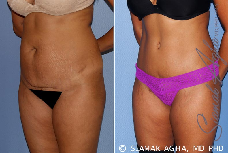 Orange County Newport Beach Tummy Tuck 31 Front Left View
