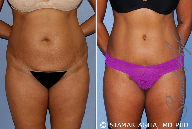 Orange County Newport Beach Tummy Tuck Patient 31