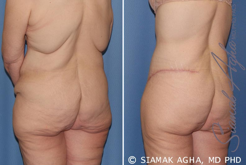 Orange County Newport Beach Tummy Tuck 32 Back Left View