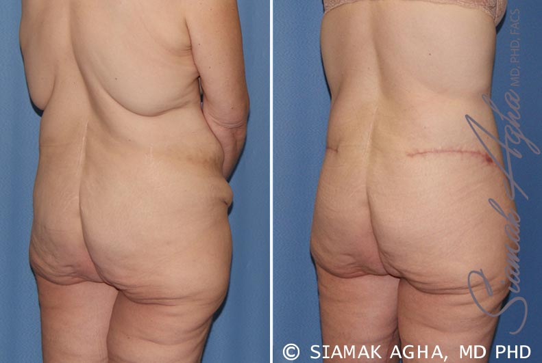 Orange County Newport Beach Tummy Tuck 32 Back Right View