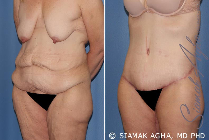 Orange County Newport Beach Tummy Tuck 32 Front Left View