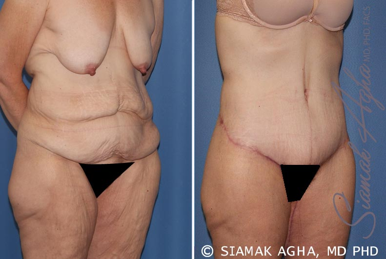 Orange County Newport Beach Tummy Tuck 32 Front Right View