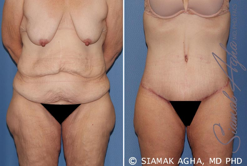Orange County Newport Beach Tummy Tuck 32 Front View