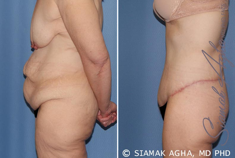 Orange County Newport Beach Tummy Tuck 32 Left View