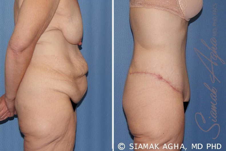 Orange County Newport Beach Tummy Tuck 32 Right View