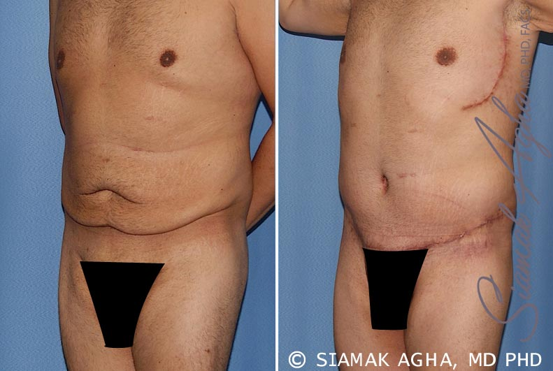 Orange County Newport Beach Tummy Tuck 33 Front Left View