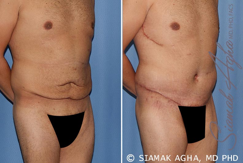 Orange County Newport Beach Tummy Tuck 33 Front Right View