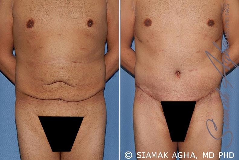 Orange County Newport Beach Tummy Tuck 33 Front View