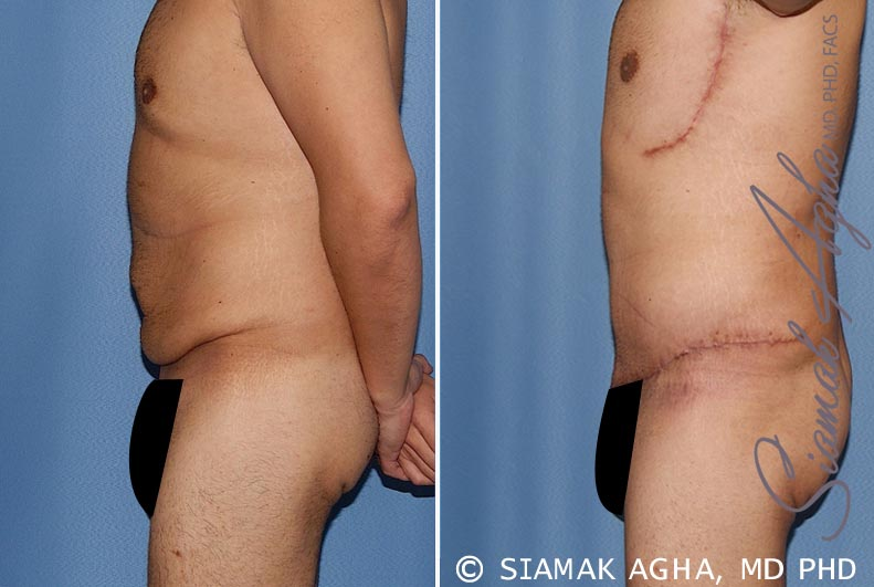 Orange County Newport Beach Tummy Tuck 33 Left View