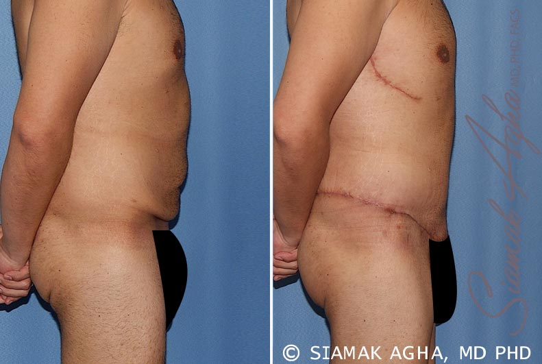 Orange County Newport Beach Tummy Tuck 33 Right View
